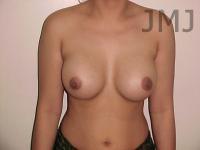 Surgeon augmentation vinings breast